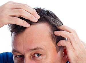 Mésogreffe pour lutter contre la chute des cheveuxà Hyères - Dr Plalut