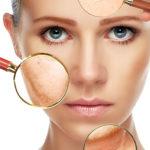 Traitement de la peau à Hyères, Dr Plault, médecin esthétique